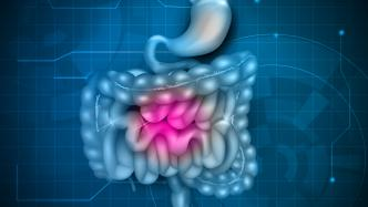 IBS, irritable bowel syndrome